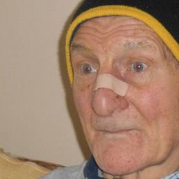Sorprende un ladro armato di coltello  Anziano aggredito si difende a morsi