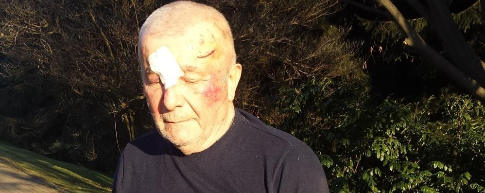 «Case come prigioni per colpa dei ladri»  Ferito a Fenegrò, è protagonista in Tv