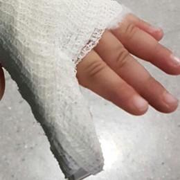 """Ingessato  il """"sesto"""" dito?  L'ospedale: «Non è vero»"""